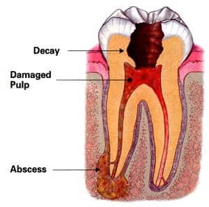 emergency dental infection