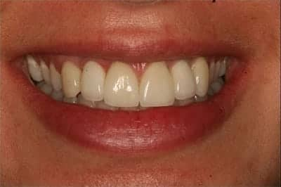 New Naperville dental implants smile