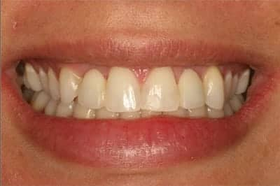 Before replacing with Naperville dental implants