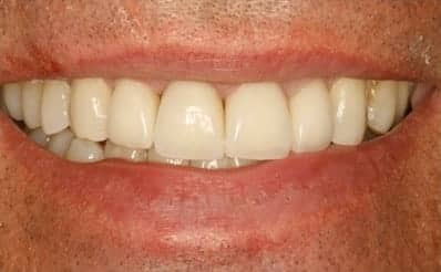 Naperville after picture with all porcelain crowns