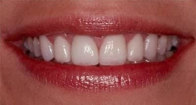 After Naperville porcelain veneers