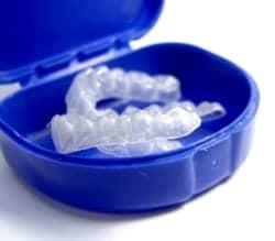 Naperville teeth whitening trays