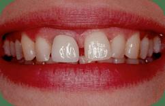 closeup-daniela-before
