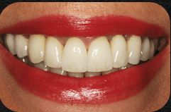 Gorgeous smile created by Dr. Newkirk