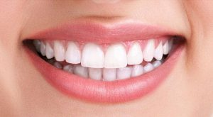 Naperville Teeth Whitening