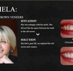 A Smile Makeover Done by Dr. Newkirk with Porcelain Veneers