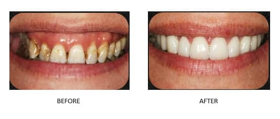 Before and after images of a smile makeover done by Dr. David Newkirk