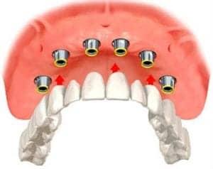 illustration of an implant overdenture