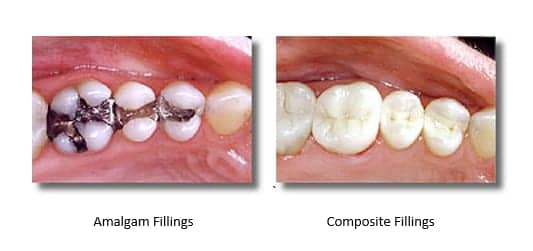 pictures of teeth with amalgam fillings and teeth with mercury-free composite fillings