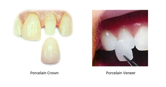Left: porcelain crown; Right: porcelain veneer