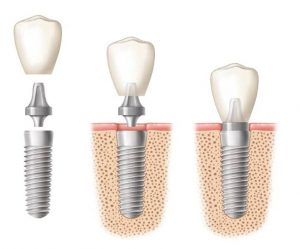 Ilustration of a dental implant crown being placed in three stages