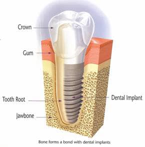 illustration of a dental implants