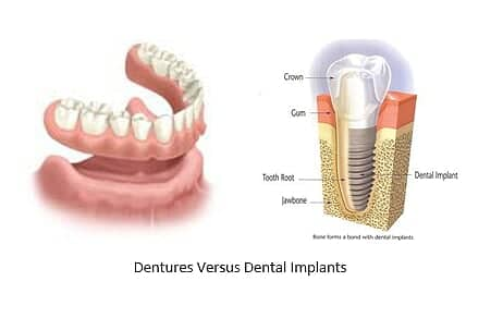 and image of dentures side by side to a dental implant