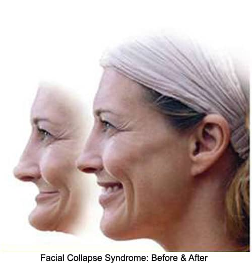 illustration of facial collapse using the profile of a woman before and after