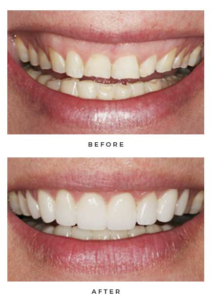 Before-and-after non-Lumineers photos of a patient's smile; from the Naperville dental office of Dr. David Newkirk.