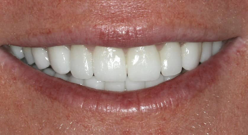 Beautiful smile done with porcelain veneers