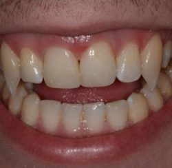 Vampire teeth done with dental bonding