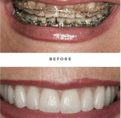 before and after case by Dr. Newkirk