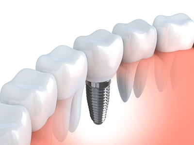 dental implant next to natrual teeth
