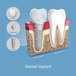 An illustration of a dental implant next to a natural tooth.