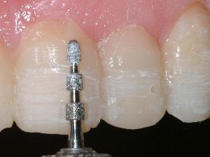 Teeth being prepped for porcelain veneers