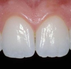 Image of natural looking teeth with dental work