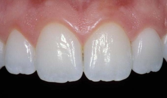 Image of natural looking teeth with dental work